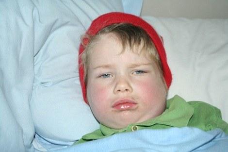 trẻ bị quai bị và triệu chứng