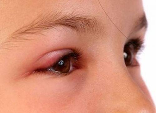 bé bị đau mắt đỏ