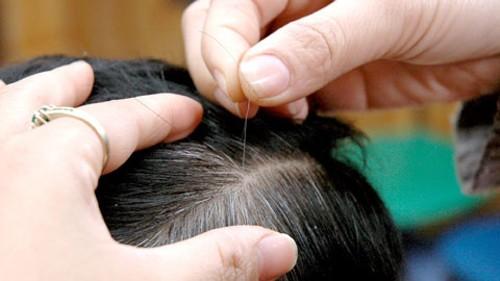 tóc trẻ bạc sớm
