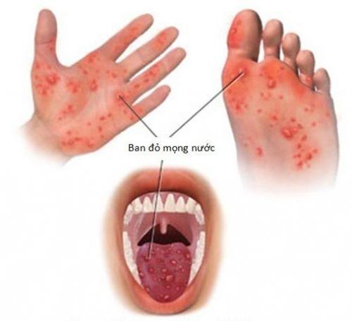 sai lầm khiến bệnh tay chân miệng dễ lây lan