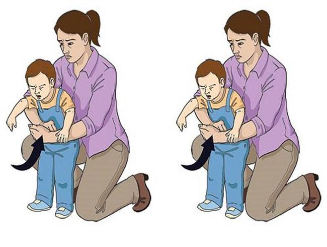 phương pháp ép bụng Heimlich
